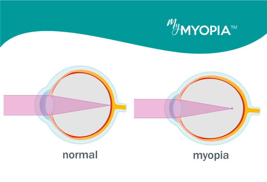 a myopia 13 fogyatékosság lehetséges videós torna a látás javítása érdekében